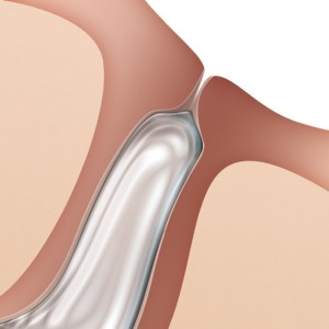 Oasis FORM FIT Intracanalicular Plugs